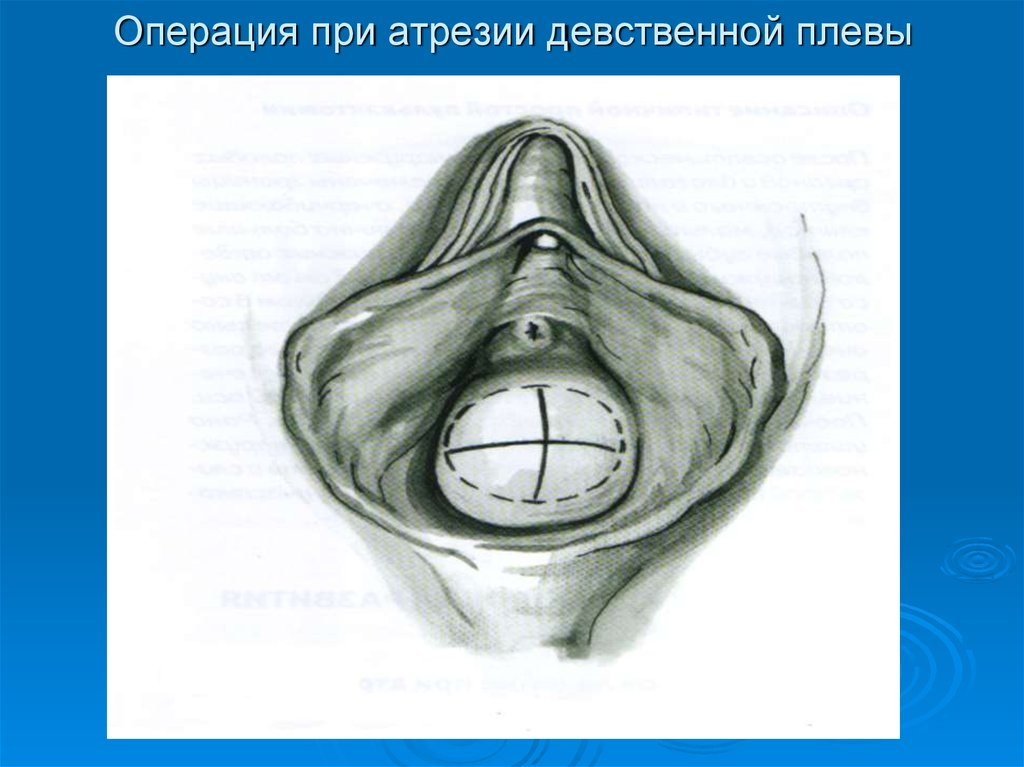 Хирургическая дефлорация цены в москве - стоимость хирургической дефлорации девственной плевы