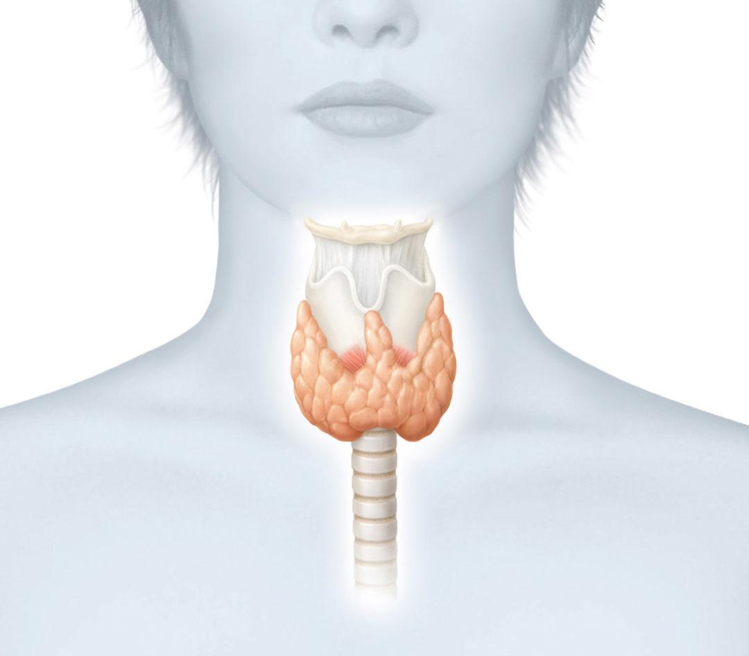 Щитовидная железа или расшатанные нервы? симптомы и лечение гипотиреоза, тиреотоксикоза. гормональный сбой