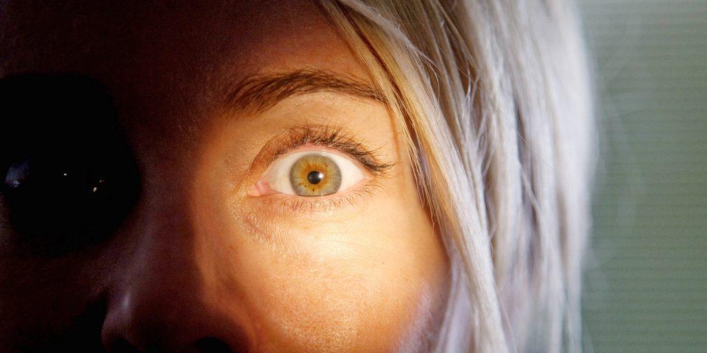 Какие виды катаракты выделяют врачи?