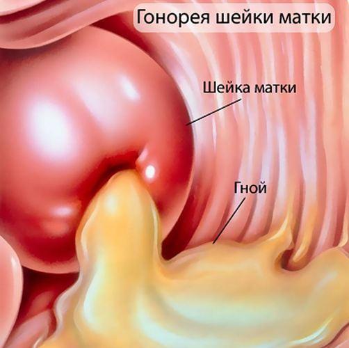Уретрит симптомы у женщин - гинекология на krasgmu.net