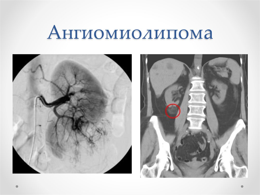 Ангиомиолипома правой почки - причины, симптомы, лечение, прогноз