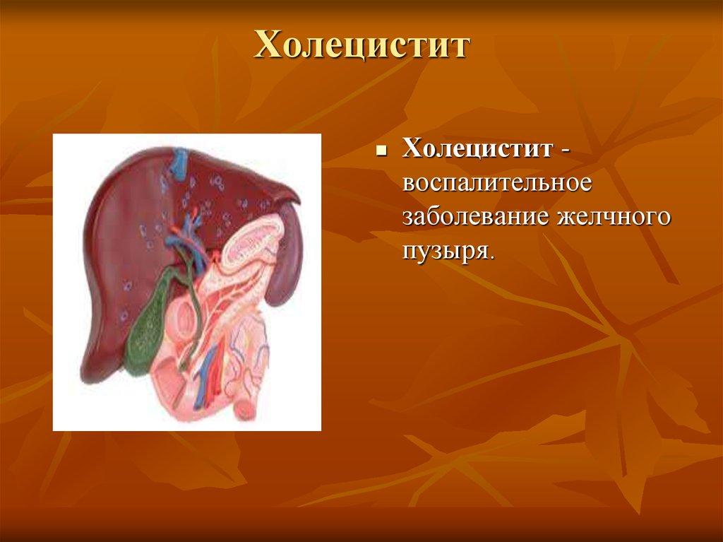 Определение и лечение калькулезного холецистита