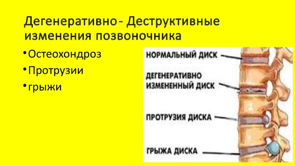 Деструкция - это что такое в медицине :: syl.ru