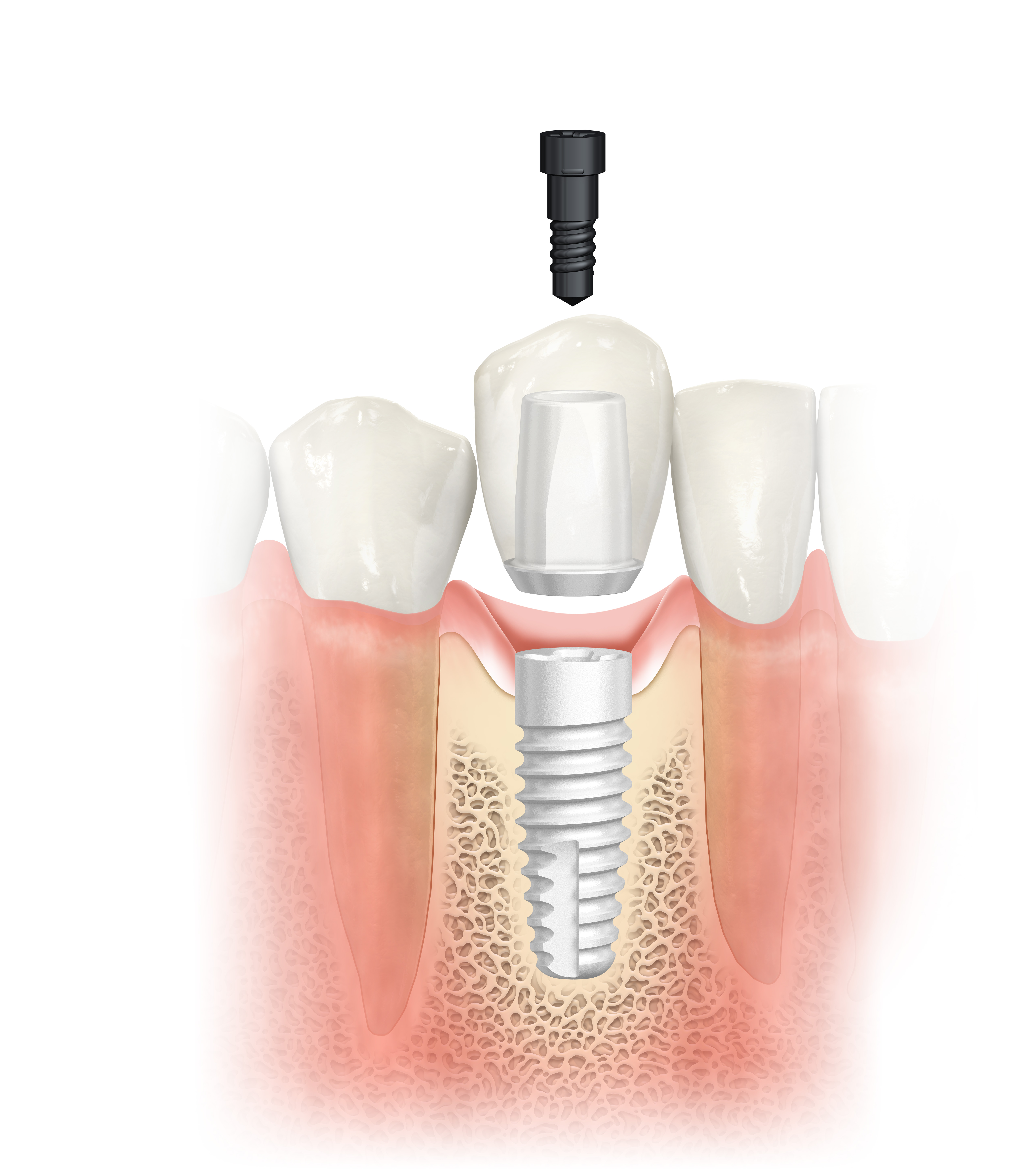 Импланты зубов виды, цены, отзывы, описание, виды имплантации
