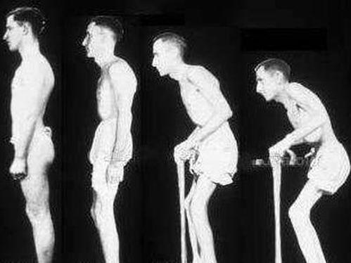 Болезнь бехтерева у мужчин: что это такое, как лечить, причины и симптомы