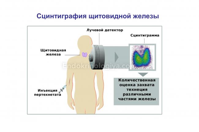 Сцинтиграфия щитовидной железы: что это такое и как подготовиться?