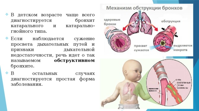 Обструкция дыхательных путей: причины, классификация и лечение