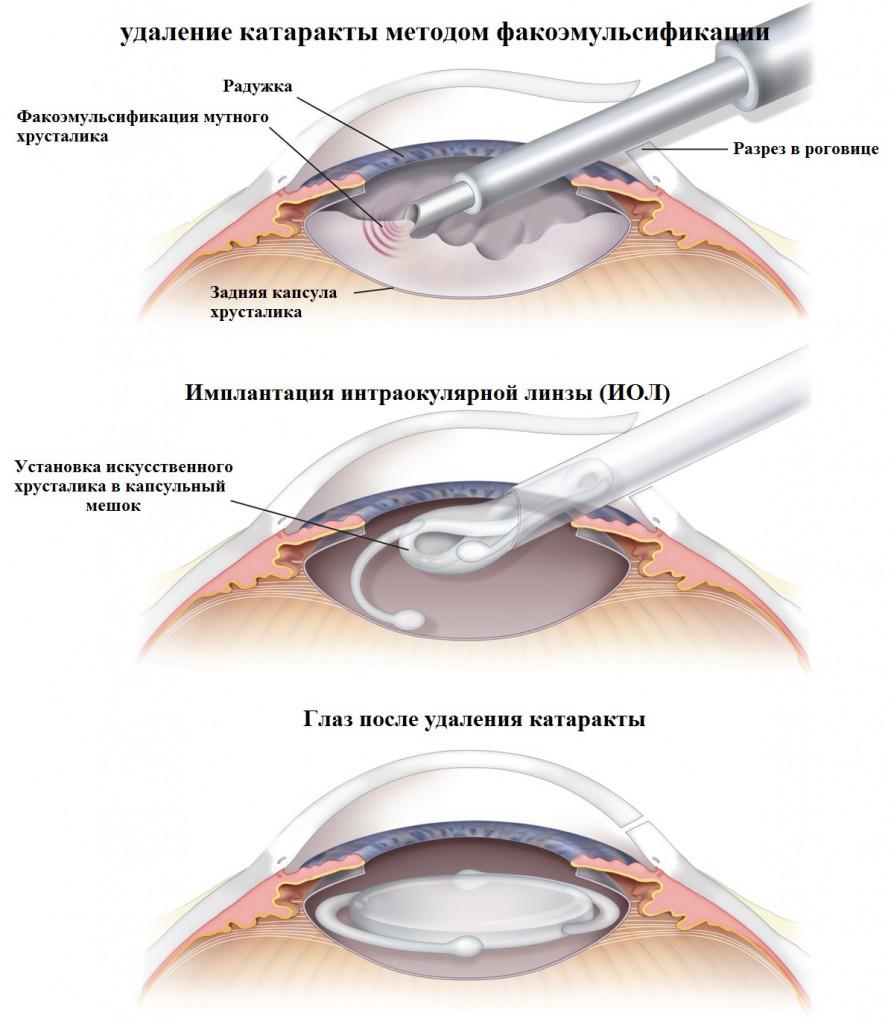 Что такое артифакия глаза