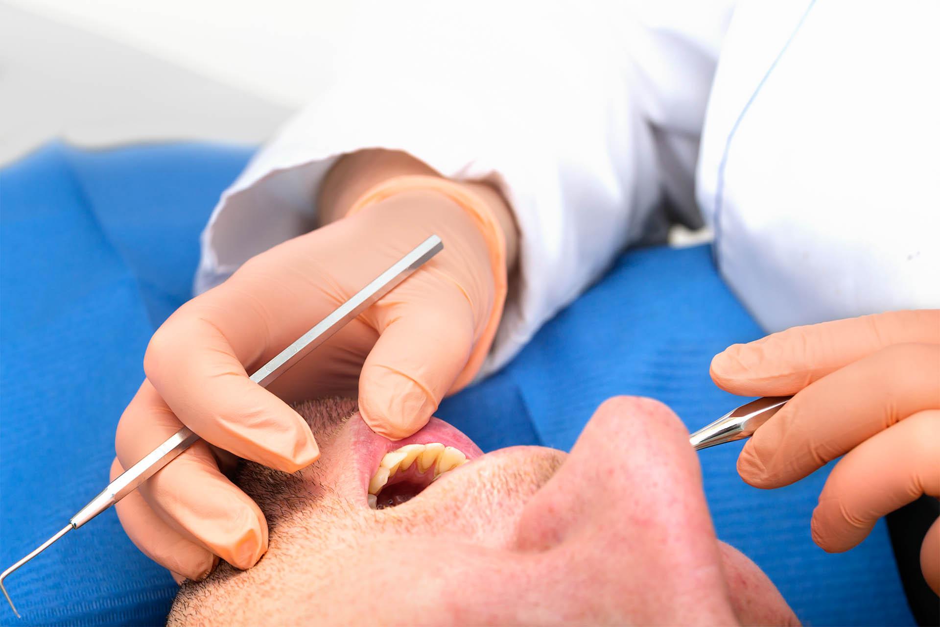 Санация рта перед операцией, что значит санировать полость?