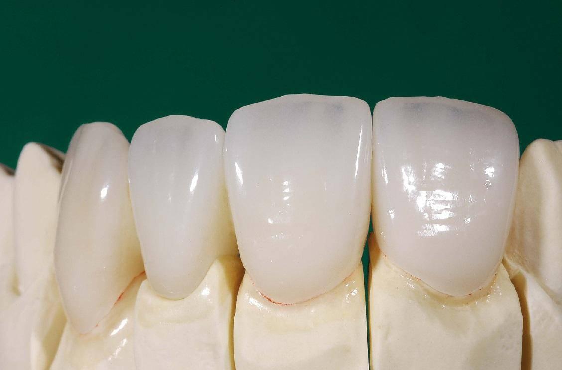 Коронки на зубы: особенности, виды и область применения,