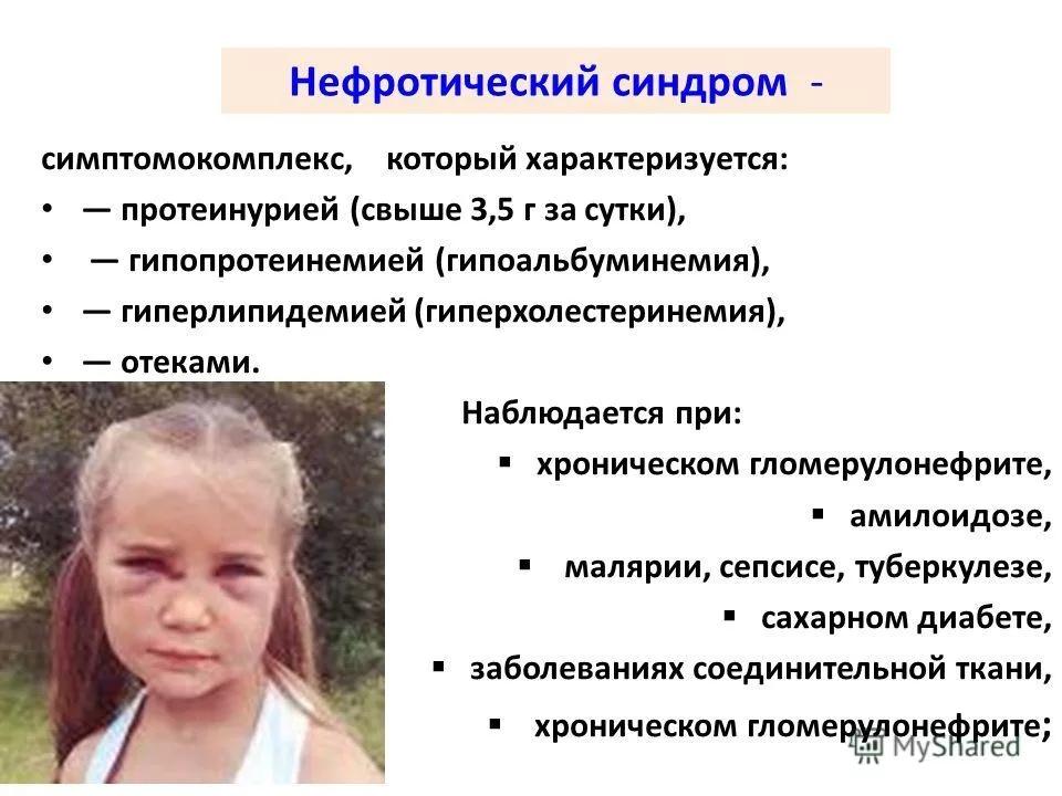 Серотониновый синдром: развитие, симптомы и признаки, лечение