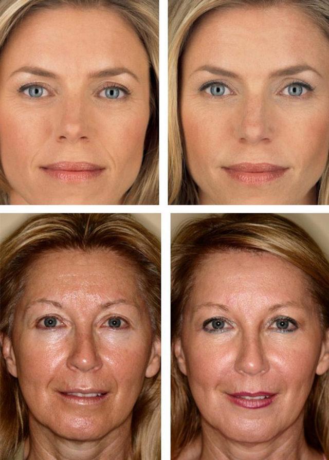Биоревитализация * отзывы с фото до и после, последствия, эффект, что это такое