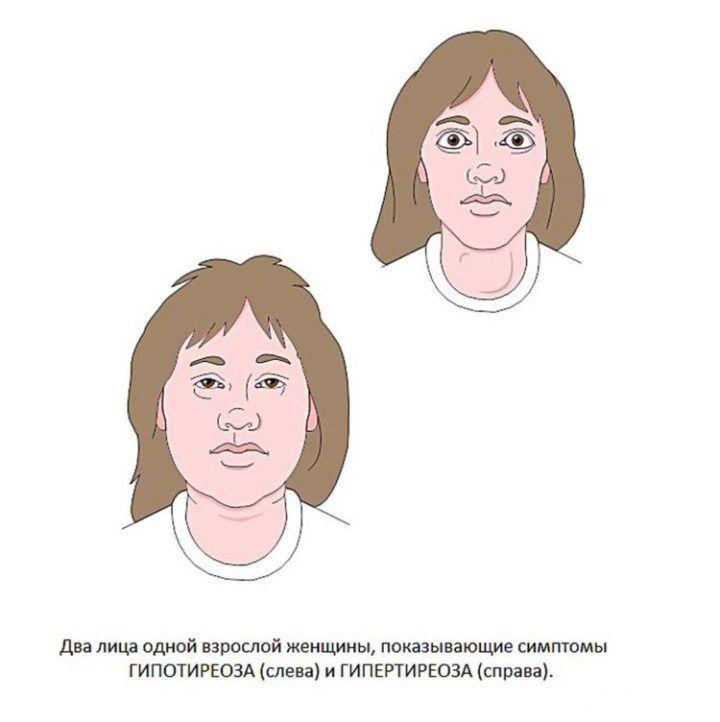 Гипертиреоз щитовидной железы: диагностика, симптомы и лечение