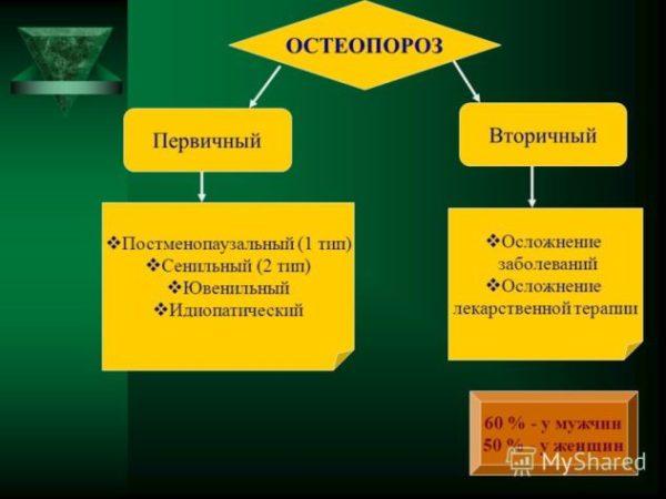 Полный обзор диффузного остеопороза, причины и лечение