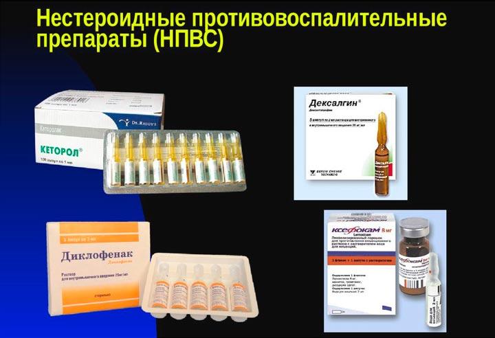 Нестероидные противовоспалительные препараты нового поколения: список, обзор