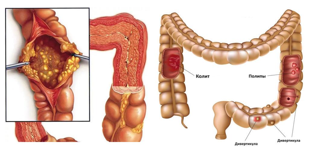 Полипы в шейке матки: причины образования, в чем их опасность, симптомы патологии, диагностические меры и методы лечения