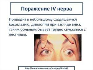 Диплопия (двоение изображения в глазах): что это такое, лечение, причины, симптомы, признаки