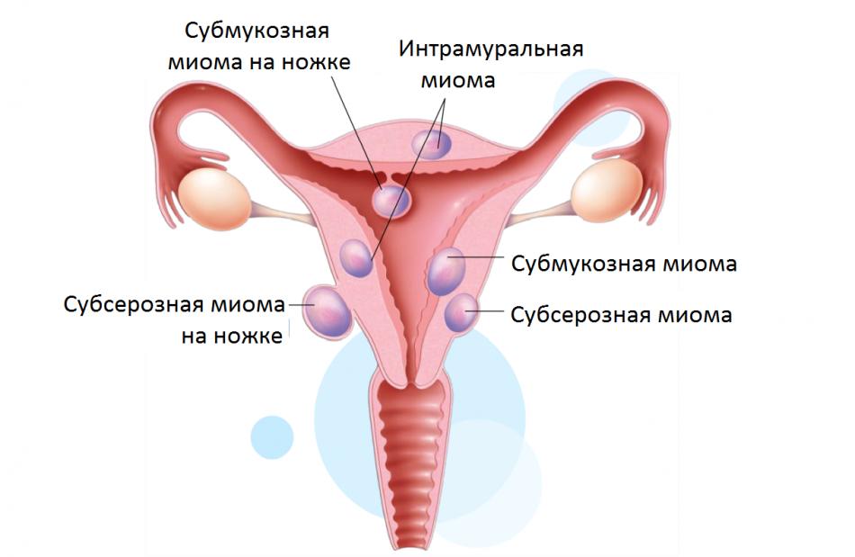 Миома матки. типы, исходы и методы лечения миомы матки.