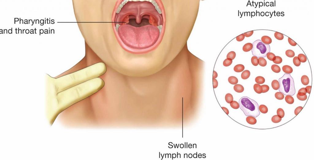 Вирус эпштейна-барра: симптомы у детей и лечение