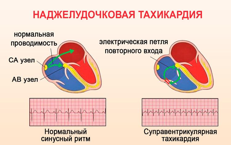 Тахикардия: формы и их отличия, причины, проявления, способы снятия приступа и терапия