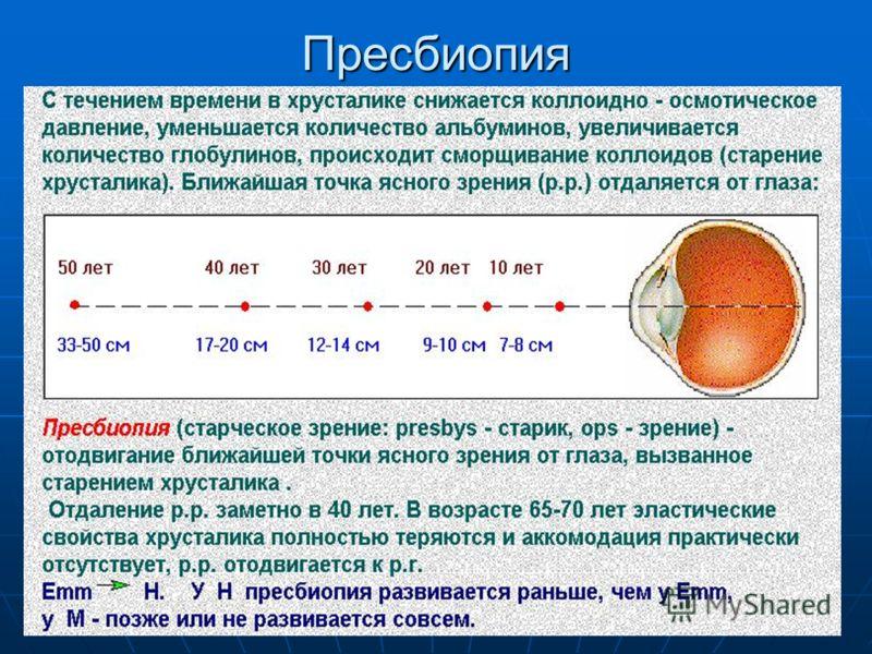 Пресбиопия обоих глаз: признаки и причины, коррекция, лечение и упражнения при заболевании