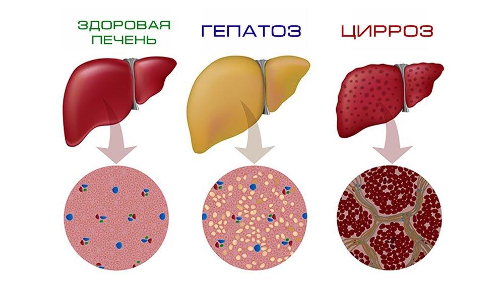 Диета при гепатозе печени: что можно и нельзя есть при гепатозе