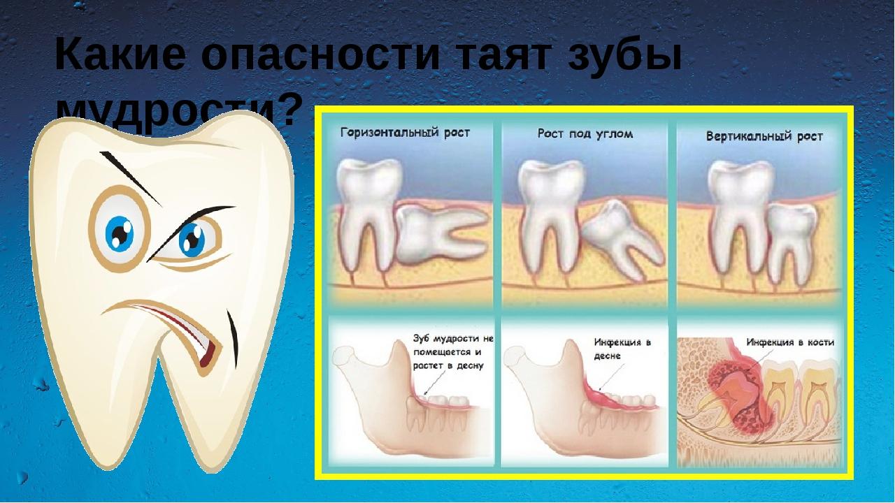 Нужны ли зубы мудрости: какая польза от восьмерок и что дает их удаление