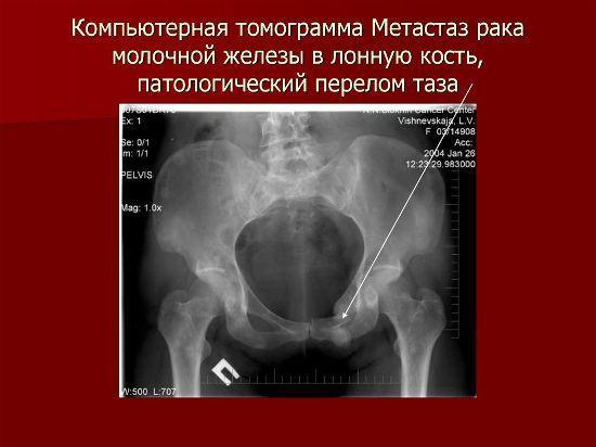 Метастазы в костях: симптомы, лечение, прогноз срока жизни