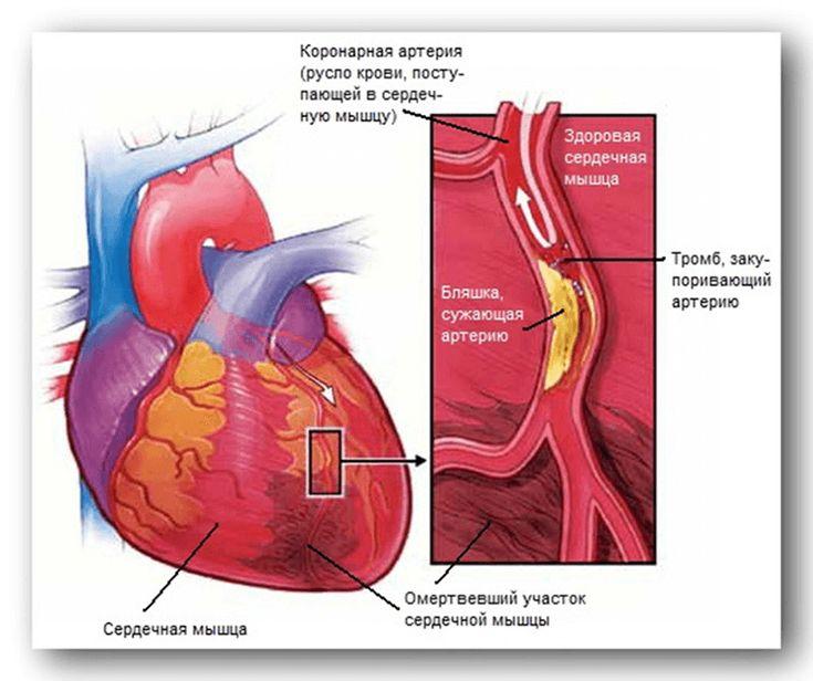 Что такое опсс в кардиологии. опсс в медицине что это такое. общее периферическое сопротивление сосудов опсс