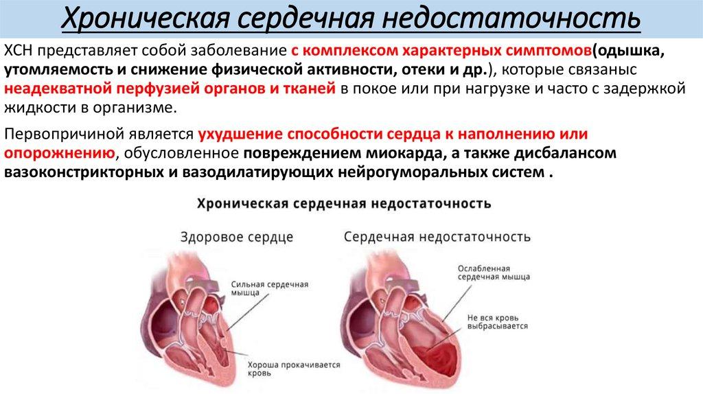 Что такое оцк в медицине. влияние медикаментов на показатели кровообращения. определение среднего времени циркуляции - человек и здоровье