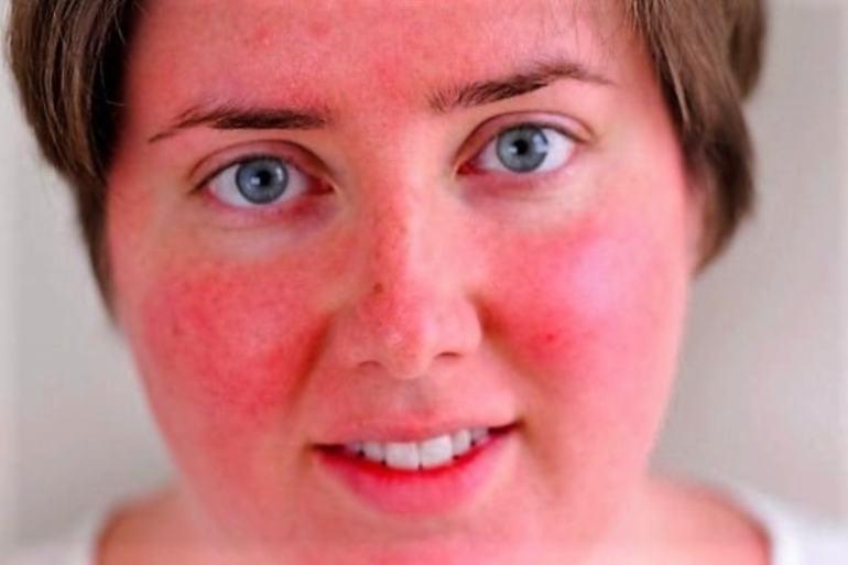 Гиперемия: что это такое, на коже лица, венозная, артериальная, причины, лечение