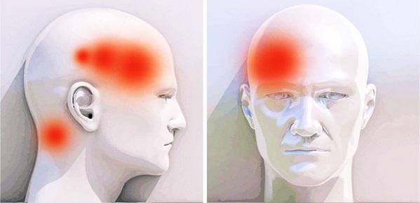 Мигрень, симптомы и лечение. как снять боль при мигрени