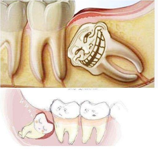 Зубы мудрости или восьмерки: что это? когда растут и сколько их?