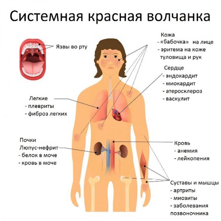 Что такое системная красная волчанка, методы ее диагностики и лечения. - симптомы, диагностика, лечение, профилактика