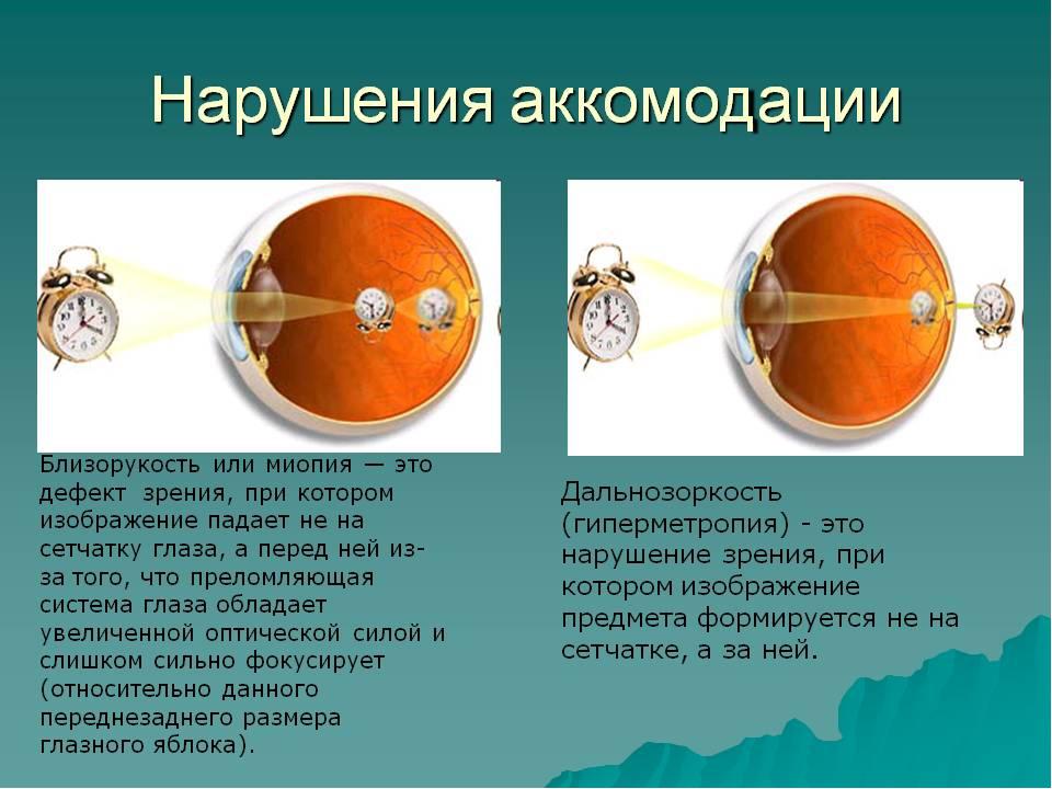 Гиперметропия: степени – слабая и скрытая глаз, что это такое