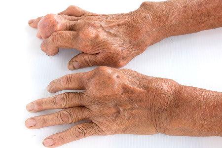 Подагра: что это за болезнь, ее признаки, симптомы и лечение у мужчин