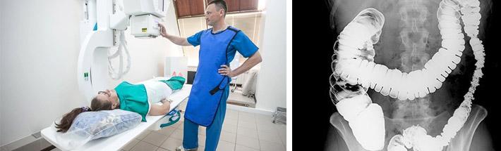 Ирригоскопия кишечника: показания, противопоказания, подготовка к исследованию | про-гастро