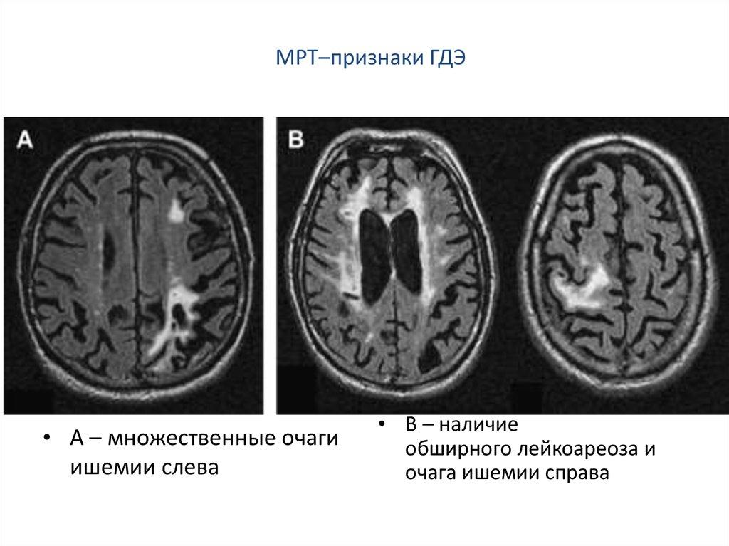 Лейкоареоз головного мозга: симптомы, причины, терапия
