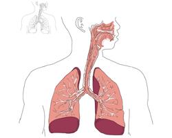 Коричневая мокрота – причины, диагностика и лечение