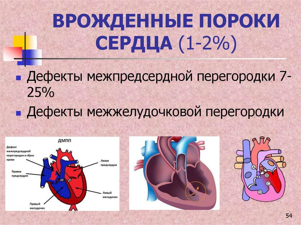 Что такое порок сердца у взрослых - здоров.сердцем
