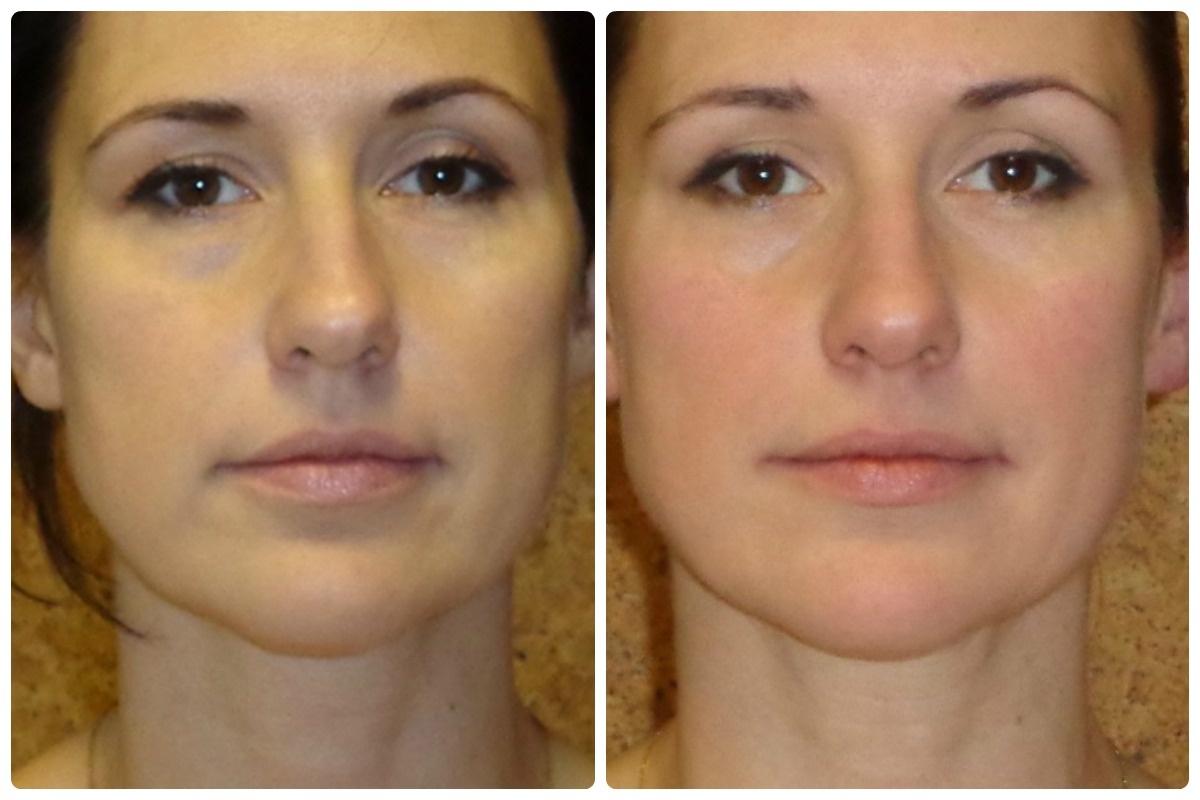 Как убрать брыли на лице: домашние, салонные и хирургические способы коррекции обвислых щек