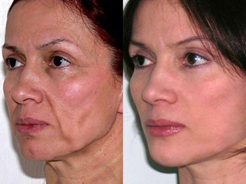 15 самых эффективных видов лифтинга кожи лица