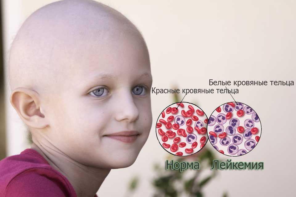 Лейкемия - что это такое? симптомы у детей и взрослых, лечение, прогноз | здрав-лаб