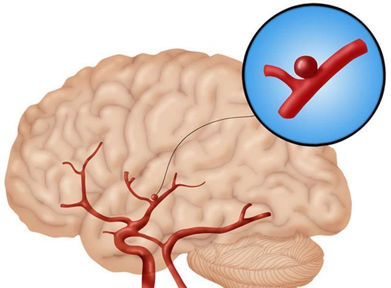 Разрыв аневризмы головного мозга: последствия, что делать, первая помощь