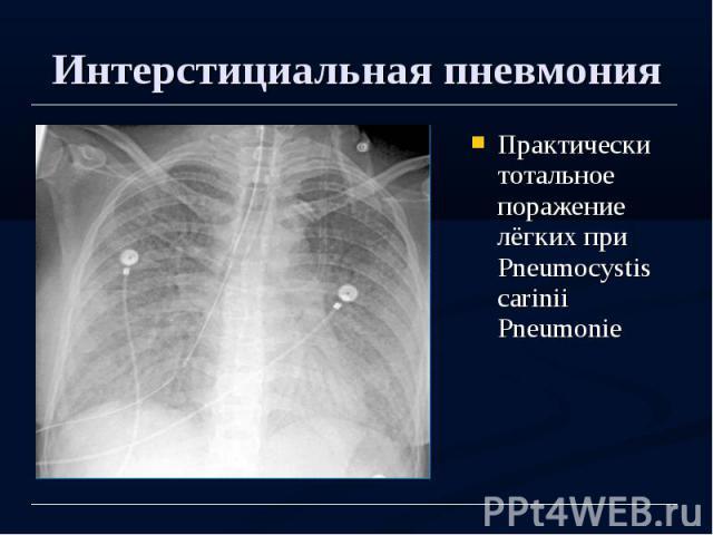 Виды интерстициальной пневмонии и способы лечения