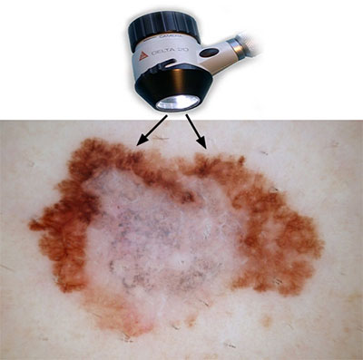 Дерматоскопия - что это за обследование кожи и родинок, результаты диагностики и цена