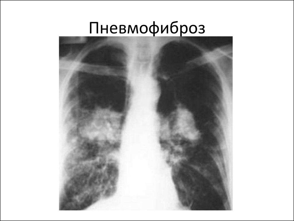 Пневмофиброз легких лечить народными средствами | портал о народной медицине