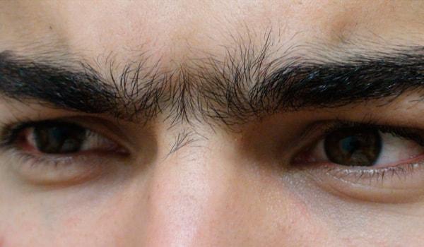 Монобровь у мужчин и женщин: что такое синофриз