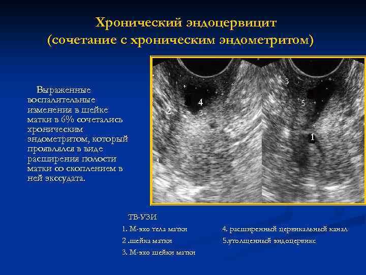 Хронический эндоцервицит - признаки заболевания, методы лечения