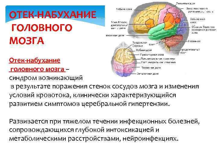 Отек головного мозга: причины, лечение и последствия